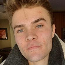 Tyler before image